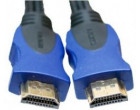 Видео кабель ExtraDigital HDMI to HDMI, 3m, Double ferrites, 1.4b V (KD00AS1511)